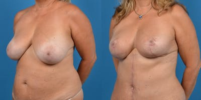 Breast Lift Gallery - Patient 14779139 - Image 2