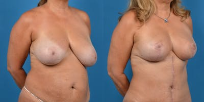 Breast Lift Gallery - Patient 14779139 - Image 4