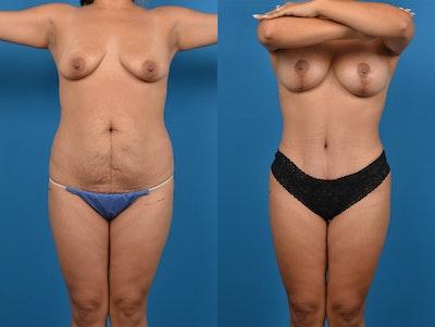 Abdominoplasty Gallery - Patient 14779159 - Image 1