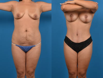 Abdominoplasty Gallery - Patient 14779159 - Image 1