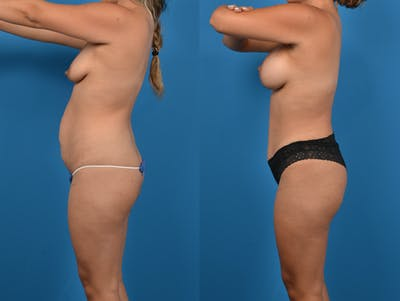 Abdominoplasty Gallery - Patient 14779159 - Image 2