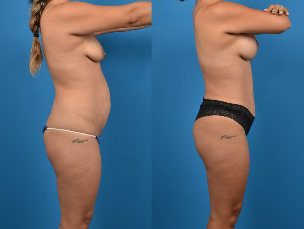 Abdominoplasty Gallery - Patient 14779159 - Image 3