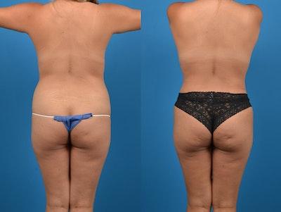 Butt Augmentation Gallery - Patient 14779163 - Image 1
