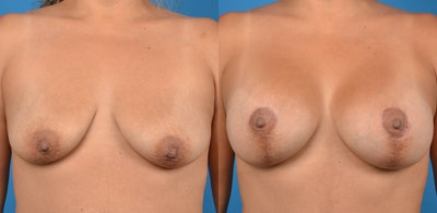 Breast Lift Gallery - Patient 14779162 - Image 1