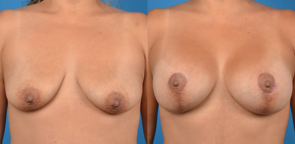 Breast Augmentation Gallery - Patient 14779160 - Image 1