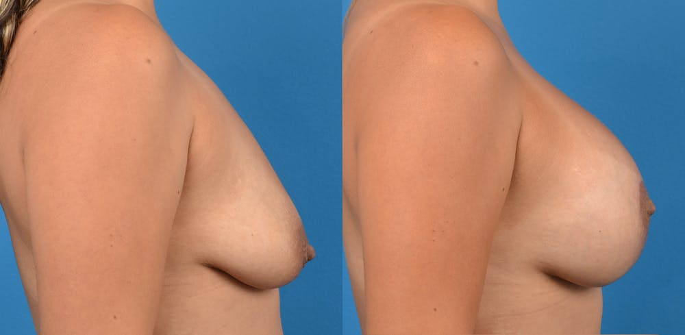 Breast Augmentation Gallery - Patient 14779160 - Image 2