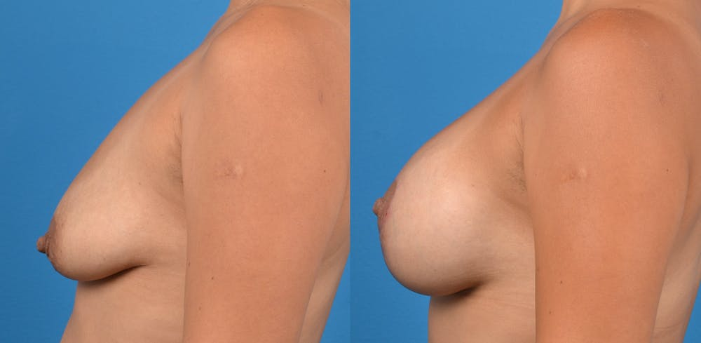 Breast Augmentation Gallery - Patient 14779160 - Image 3