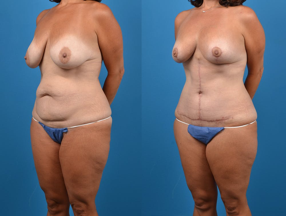 Abdominoplasty Gallery - Patient 14242433 - Image 2