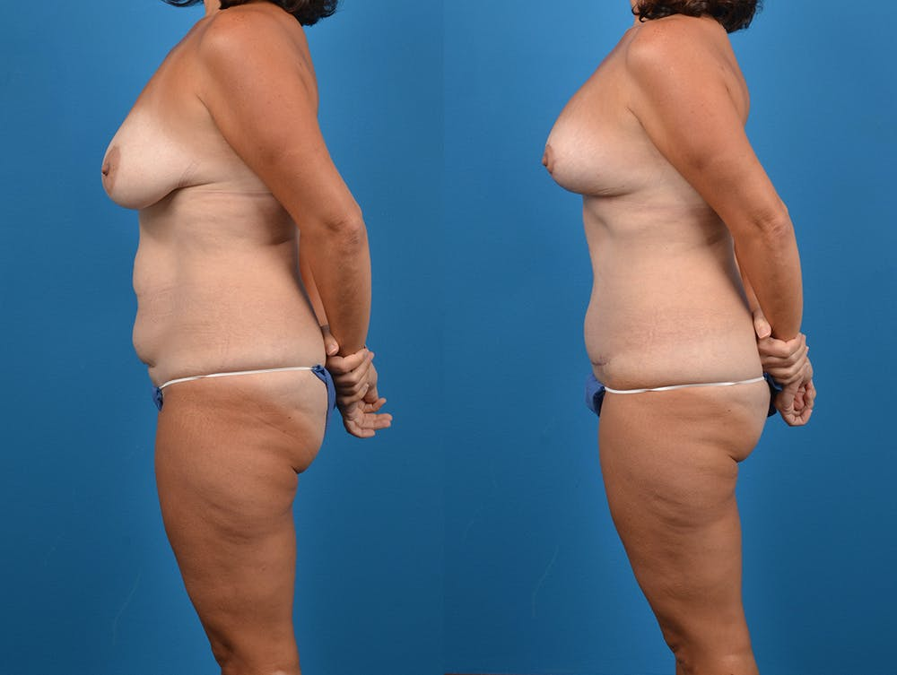 Abdominoplasty Gallery - Patient 14242433 - Image 3