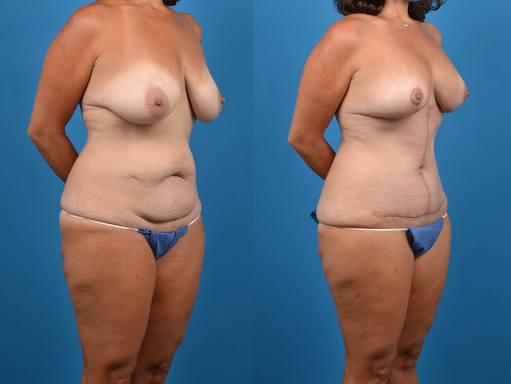 Abdominoplasty Gallery - Patient 14242433 - Image 4