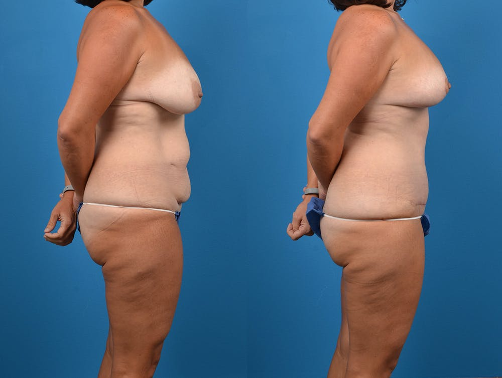 Abdominoplasty Gallery - Patient 14242433 - Image 5