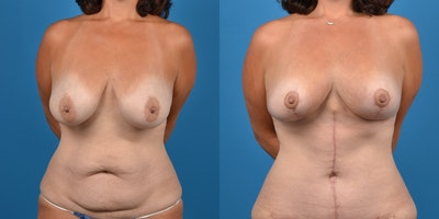 Breast Lift Gallery - Patient 14779179 - Image 1
