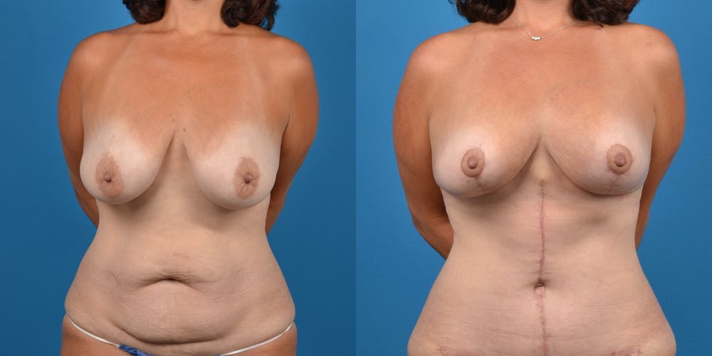 Mommy Makeover Gallery - Patient 14779178 - Image 6