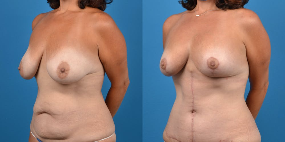 Mommy Makeover Gallery - Patient 14779178 - Image 7