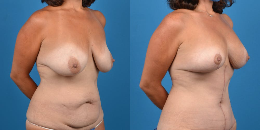 Mommy Makeover Gallery - Patient 14779178 - Image 9
