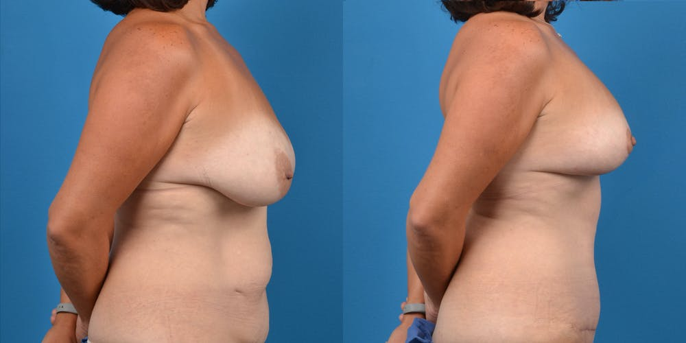 Mommy Makeover Gallery - Patient 14779178 - Image 10