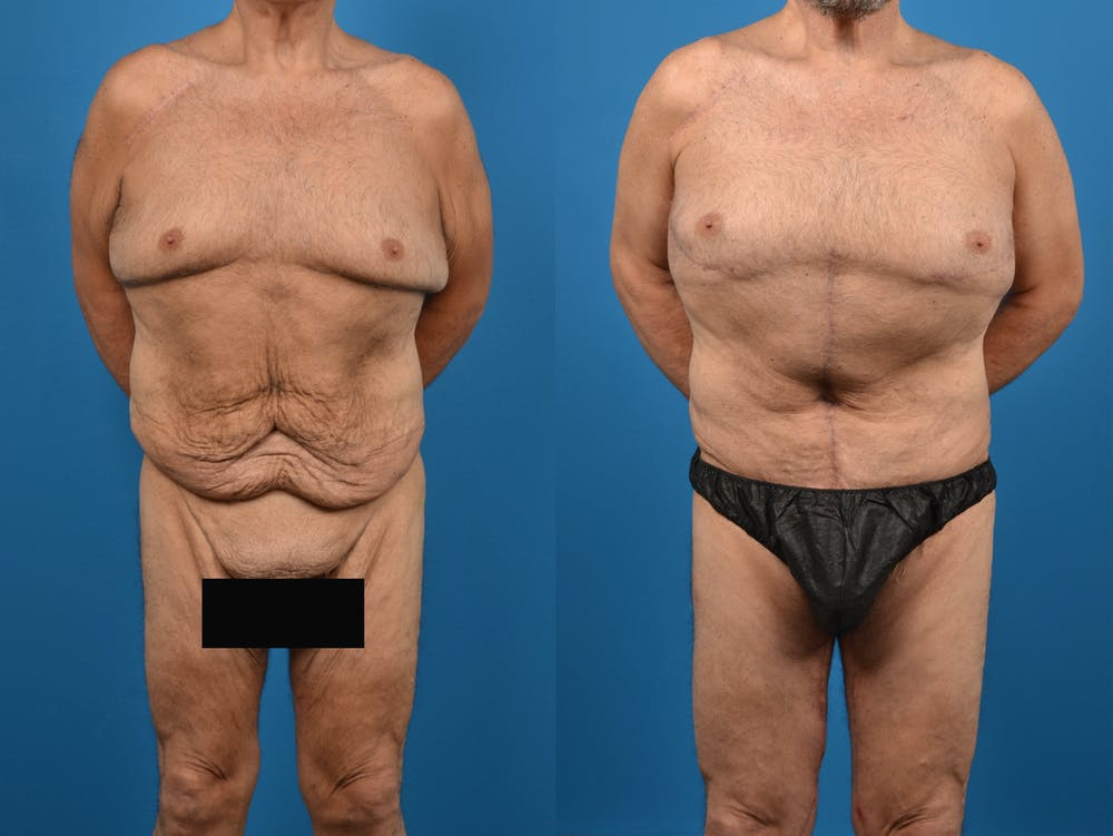 Body Contouring Gallery - Patient 14779218 - Image 1