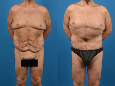 Abdominoplasty Gallery - Patient 14779210 - Image 1