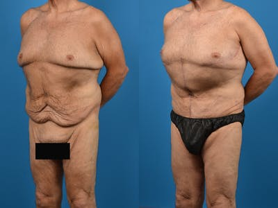 Abdominoplasty Gallery - Patient 14779210 - Image 2