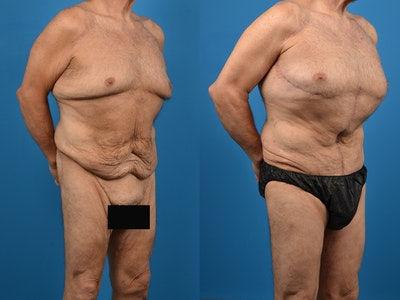Thigh Lift Gallery - Patient 14779246 - Image 1