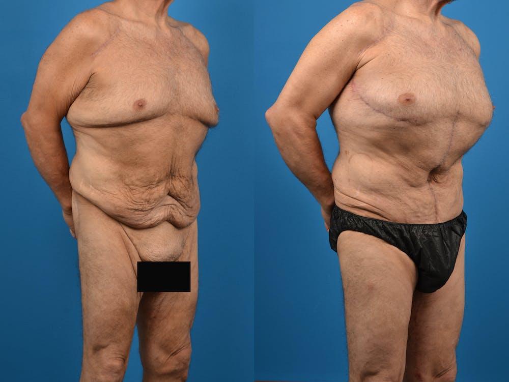 Abdominoplasty Gallery - Patient 14779210 - Image 3