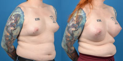 Transgender Surgery (MTF) Gallery - Patient 14779224 - Image 4