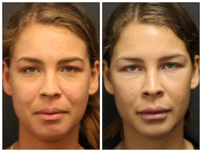 Acne Treatment Gallery - Patient 14779256 - Image 1