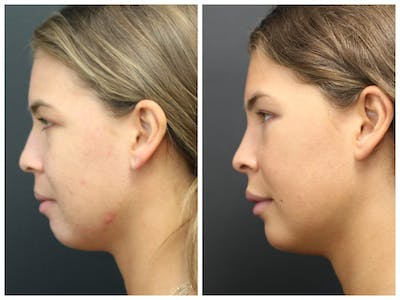 Acne Treatment Gallery - Patient 14779256 - Image 2