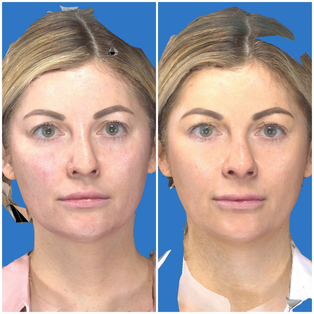 Aesthetic Facial Balancing Gallery - Patient 14779352 - Image 1