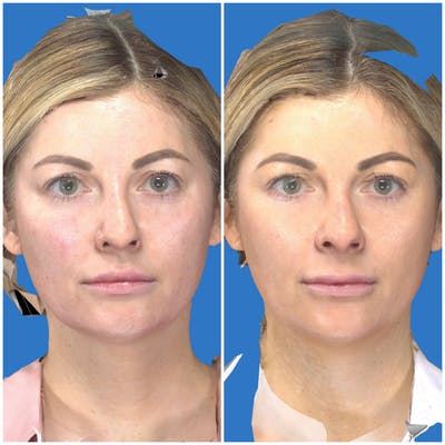 Aesthetic Facial Balancing Gallery - Patient 14779269 - Image 1
