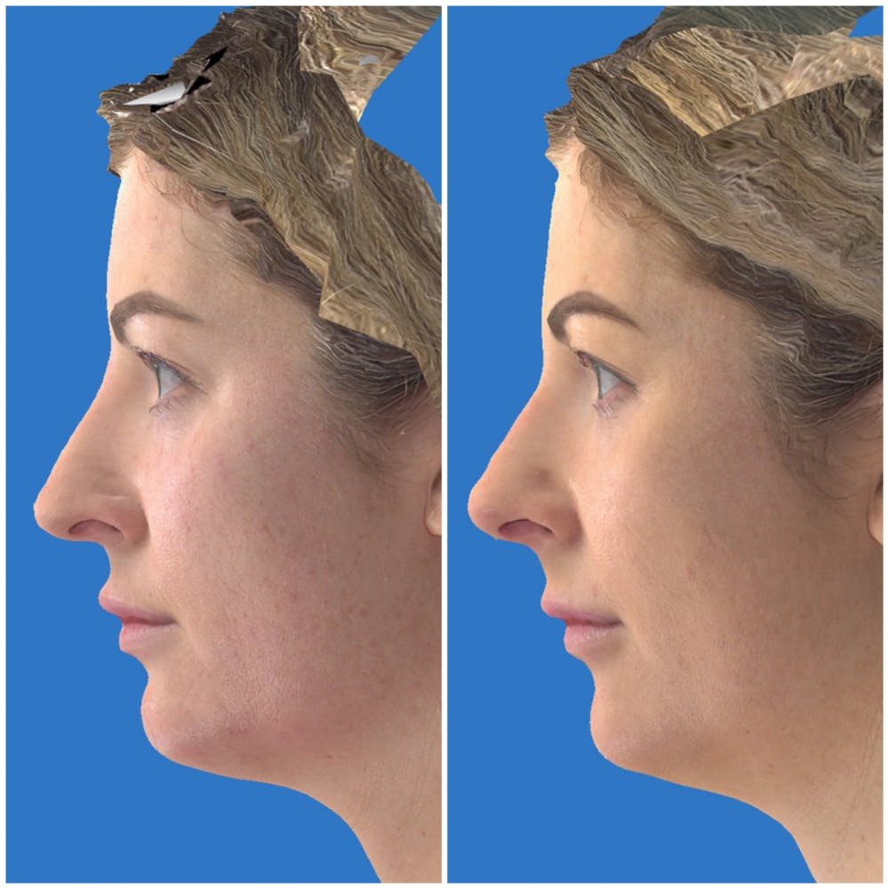 Aesthetic Facial Balancing Gallery - Patient 14779352 - Image 2