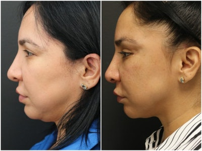 Jawline Filler Gallery - Patient 14779274 - Image 1
