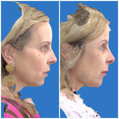 Liquid Facelift Gallery - Patient 14779277 - Image 4
