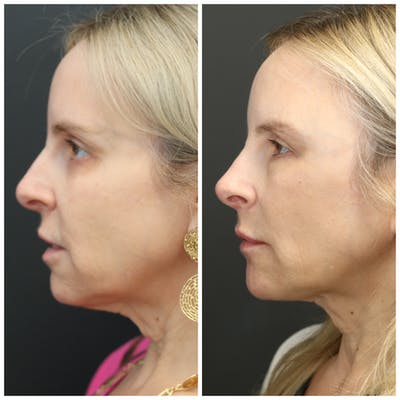 Liquid Facelift Gallery - Patient 14779277 - Image 2