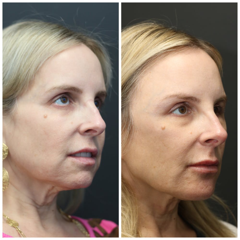 Liquid Facelift Gallery - Patient 14779277 - Image 1