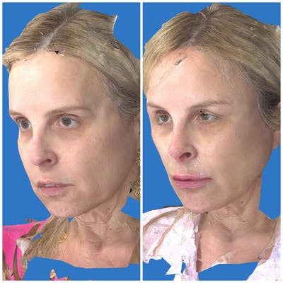 Aesthetic Facial Balancing Gallery - Patient 14779353 - Image 4