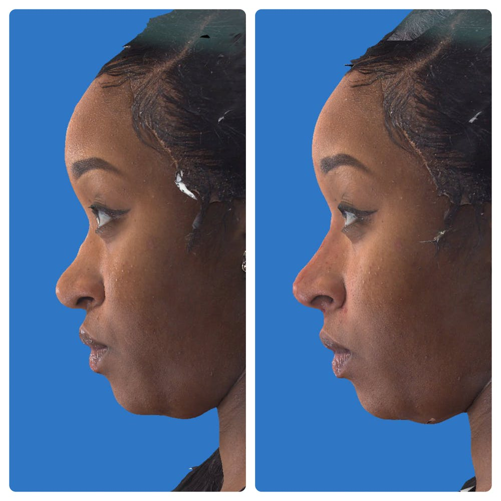 Liquid Rhinoplasty Gallery - Patient 14779300 - Image 3
