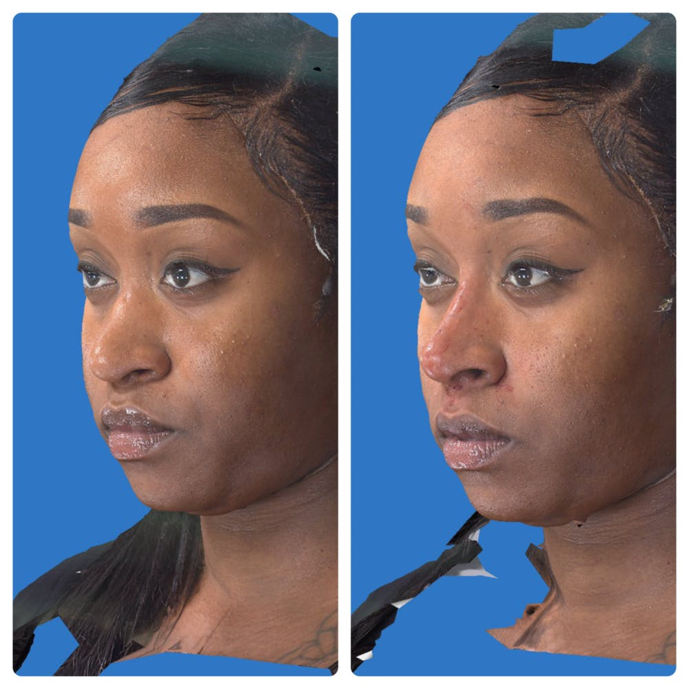 Liquid Rhinoplasty Gallery - Patient 14779300 - Image 1