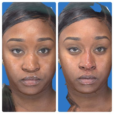 Liquid Rhinoplasty Gallery - Patient 14779300 - Image 2