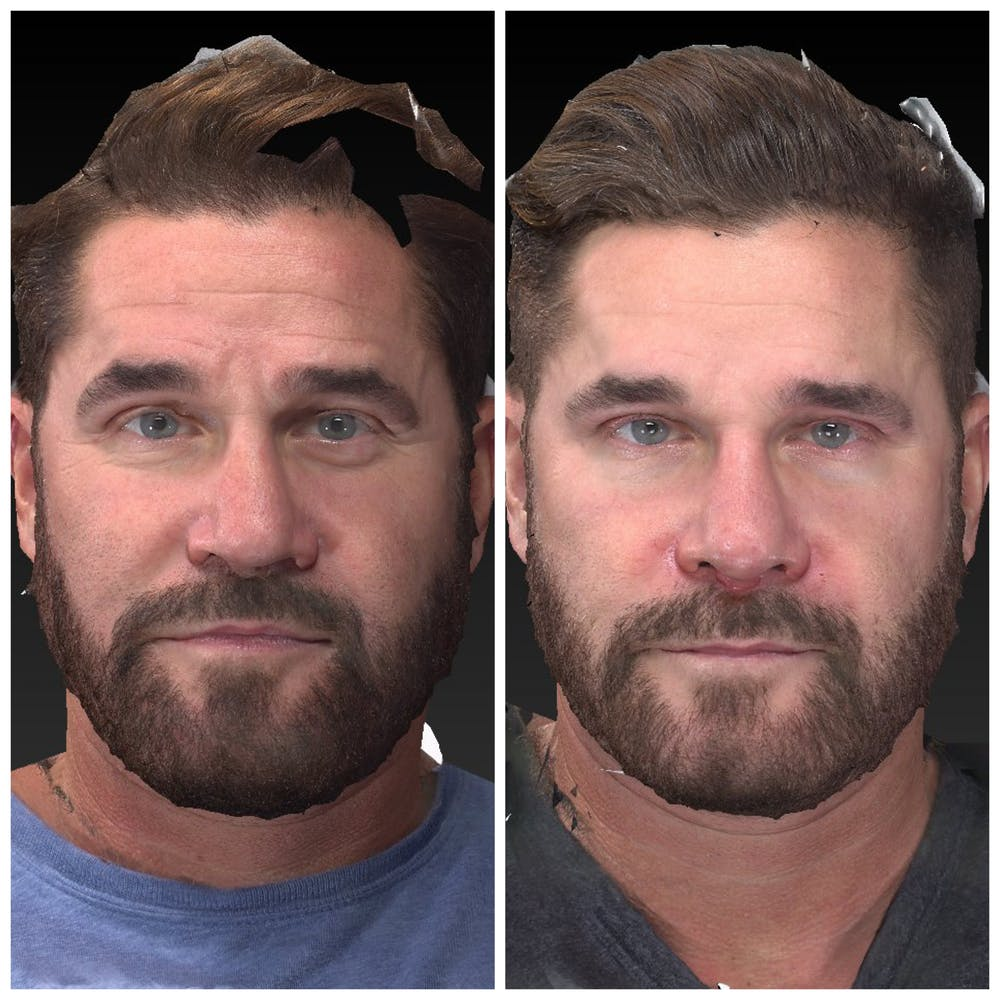 Aesthetic Facial Balancing Gallery - Patient 14779355 - Image 1