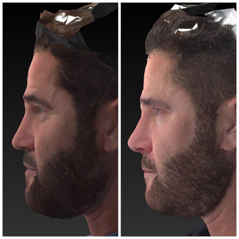 Aesthetic Facial Balancing Gallery - Patient 14779355 - Image 2