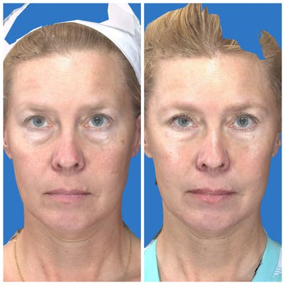 Under Eye Filler Gallery - Patient 14779342 - Image 1