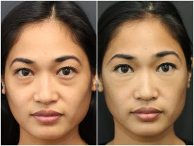 Under Eye Filler Gallery - Patient 14779345 - Image 1
