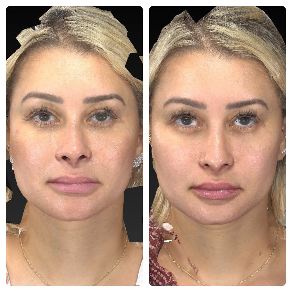 Aesthetic Facial Balancing Gallery - Patient 14779376 - Image 1