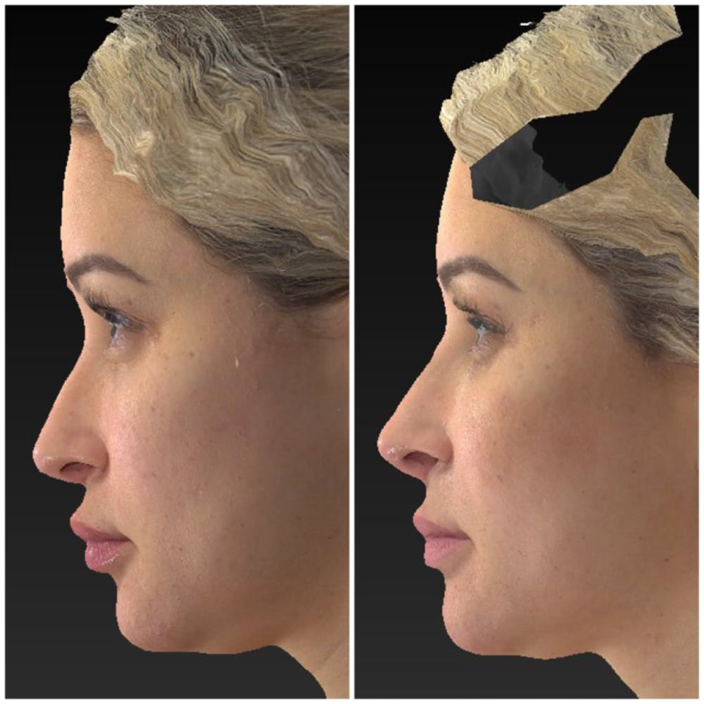 Aesthetic Facial Balancing Gallery - Patient 14779376 - Image 2