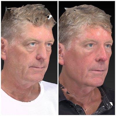 Aesthetic Facial Balancing Gallery - Patient 14779378 - Image 2