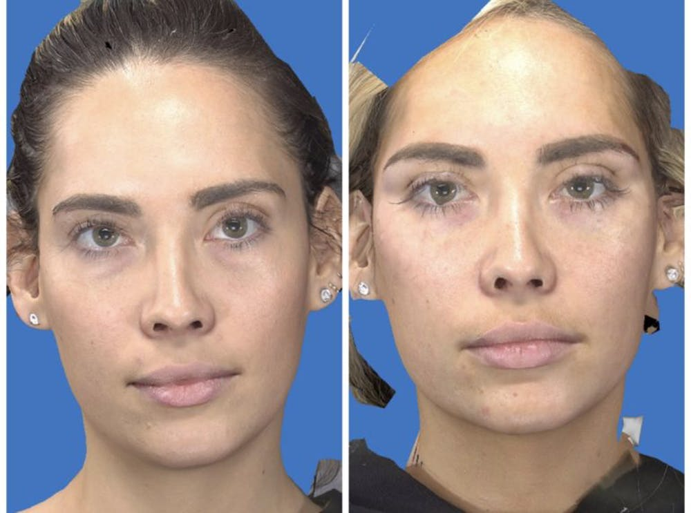 Aesthetic Facial Balancing Gallery - Patient 14779379 - Image 1