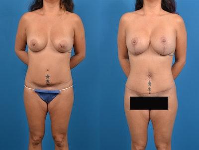 Abdominoplasty Gallery - Patient 15615549 - Image 1