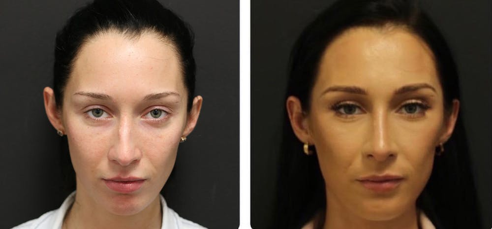 Aesthetic Facial Balancing Gallery - Patient 11681593 - Image 1