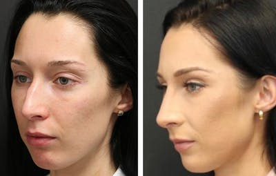 Rhinoplasty Gallery - Patient 11681676 - Image 1